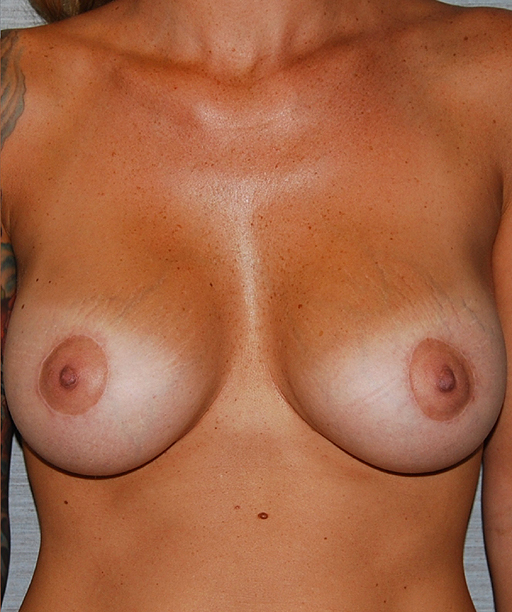 Pictures of breast lift surgery